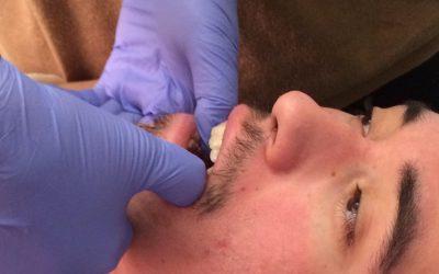 Kiristääkö nupissa vaiko hampaissa?